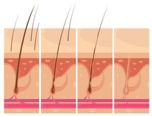 Domaći pripravak protiv Alopecie areate